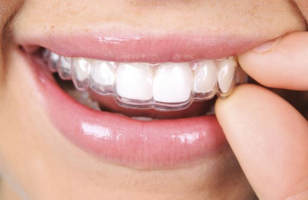 Invisalign treatment from the best dental clinic in Dubai. Virtually invisible dental braces #invisalign #dental #braces #orthodontics