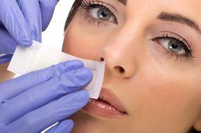 Ako sa zbaviť chĺpkov na tvári: 6 prírodných spôsobov
