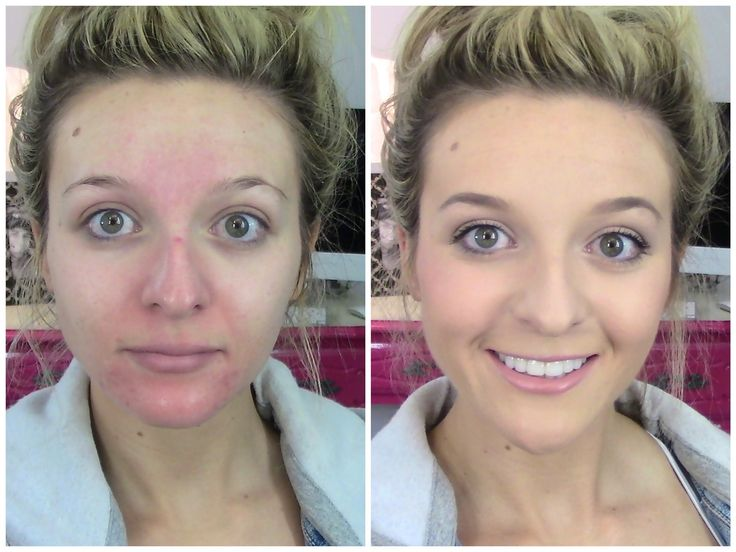 Acne, Rosacea FULL Coverage Foundation Routine Using DRUGSTORE Products