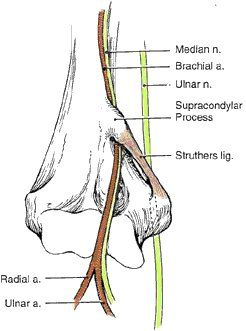 Struthers' ligament: median nerve is vulnerable to compression at this site.