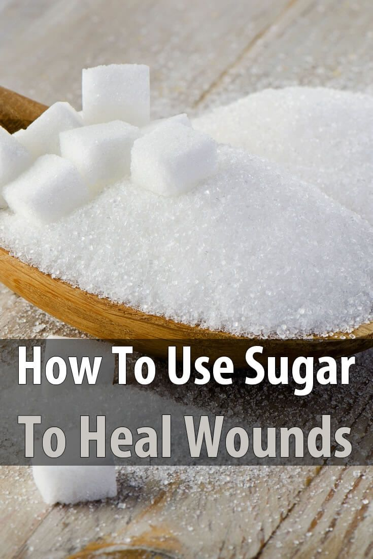 It might surprise you to learn that sugar isn't just for sweetening food; it can also be used to help wounds heal faster.