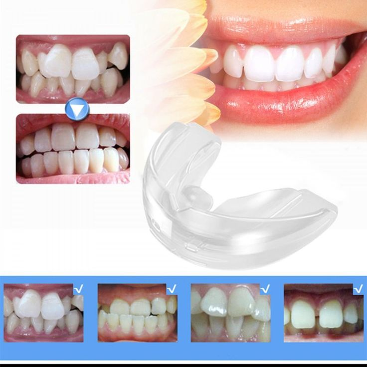 Orthodontic Appliance Teeth Trainer Alignment Oral Hygiene Dental Care Equipment #Unbranded