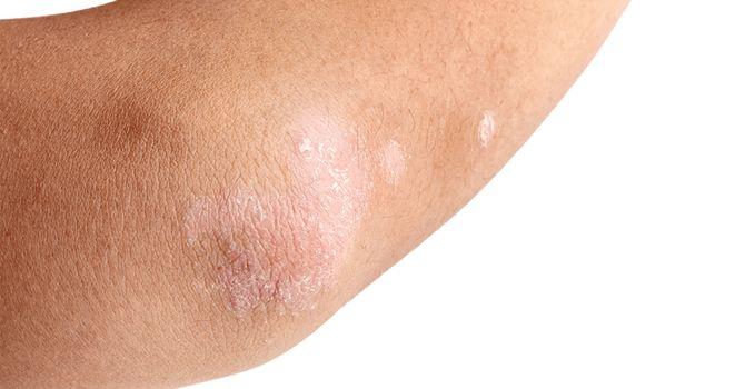 Het belangrijkste om te doen wanneer je last heb van droge ellebogen is veel scrubben. Door te scrubben verwijder je dode huid...