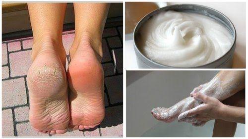 Elimina los hongos y los callos de los pies con este increíble remedio casero - Mejor con Salud
