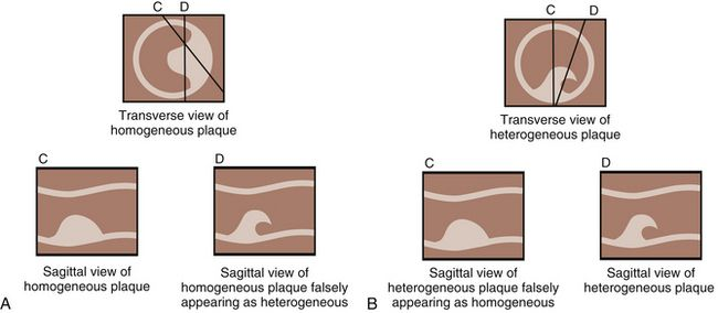 Line diagrams showing the value of obtaining both transverse and sagittal images when characterizing plaque. In the sagittal plane, images can be obtained that would falsely simulate homogeneous plaque (A; line C) or heterogeneous plaque (B, line D). Correlation in both planes is necessary to be certain that the plaque is characterized correctly.