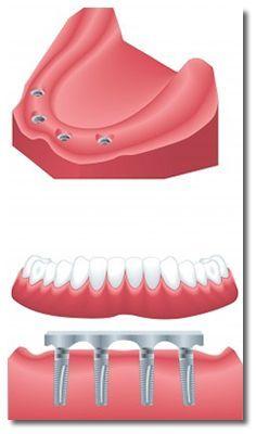 24 Hour Emergency Dentist Las Vegas
