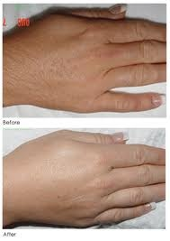 Best Permanent Hair Removal