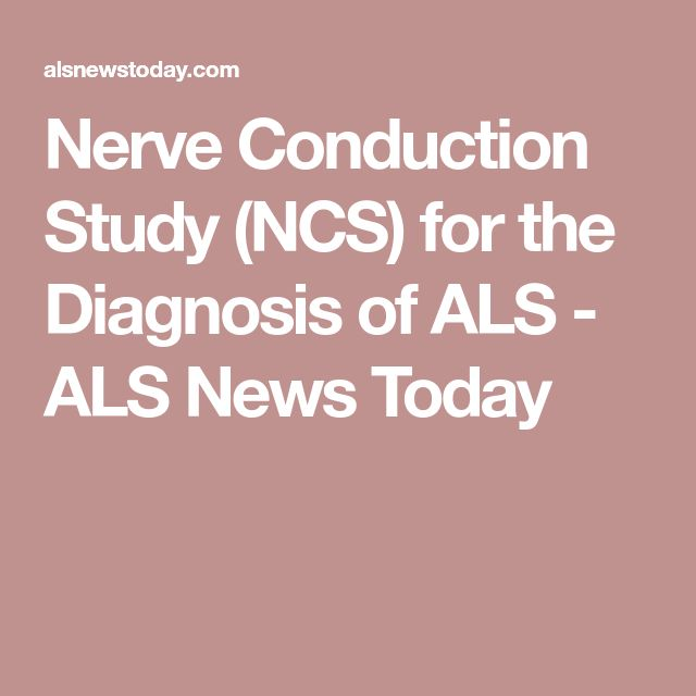 Nerve Conduction Study (NCS) for the Diagnosis of ALS - ALS News Today