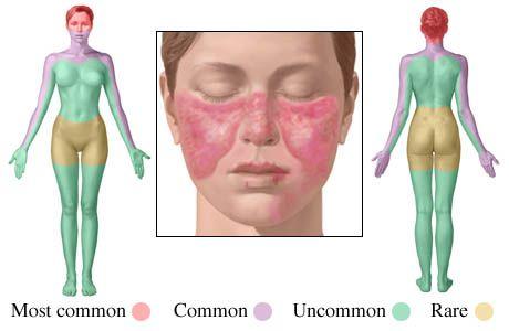 Los síntomas mas común de LupusDolor en las coyunturas  Fiebre inexplicable,Erupciones rojizas,Anemia,Hinchazón en el tobillo (riñones envolvimientos) Doler en el pecho a respirar profundo,,Erupción forma de mariposa que afecta las mejillas -nariz,Sensibilidad a la luz solar (fotosensitible),Perdida de pelo Coagulo de sangre anormal, Dedos de las manos o los pies pálidos y morados en el frió o estrés,Convulsiones,Ulceras en la boca. No te alteres pero no esperes !