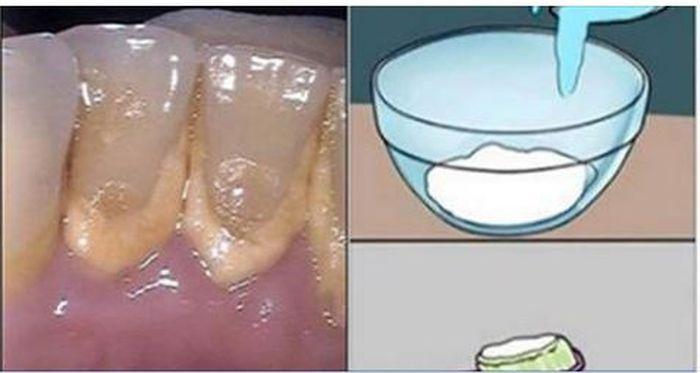 Conoce el Enjuague Bucal que Aparta El Sarro De Tus Piezas Dentales y Elimina La Placa Bacterial!