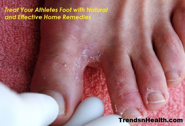 Have an Atheletes foot? don't worry because you have your own Athletes foot treatment with effective and easy Home remedies. Apply Athelete foot home remedy