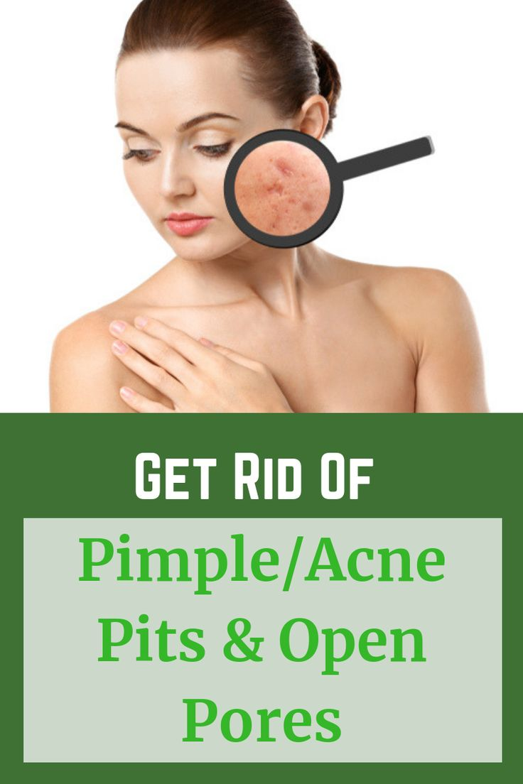 Get Rid Of Pimple/Acne Pits & Open Pores Shrink Large