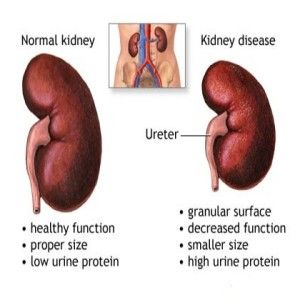 Natural Treatments for Kidney Disease