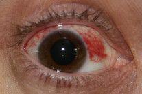 subconjunctival-hemorrhage