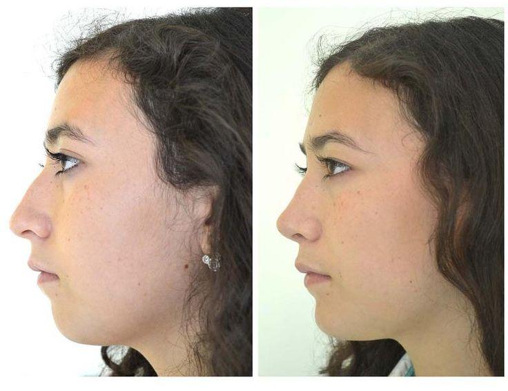 Cirugia de nariz en guadalajara
