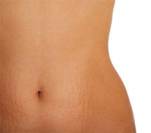3 langkah untuk menghilangkan stretch marks adalah dengan cara menggunakan cream tretinoin , menggunakan terapi laser , dan menggunakan mikrodermabrasi.