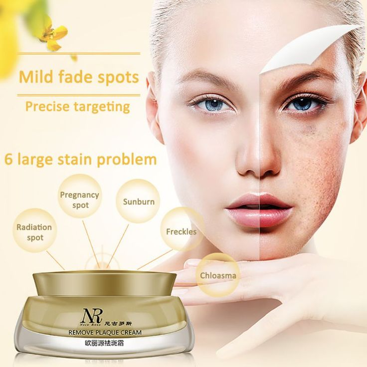 Hot 1PCS Face Skin Whitening Remove Freckle Speckle Peel Dark Spot Wrinkles Cream #Affiliate