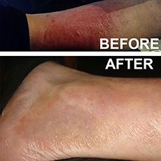 Persistent rash for two years disappeared in two weeks of using Elektra Magnesium Cream daily, plus natural food (chem-free) diet.