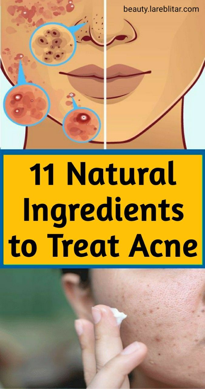 11 Natural Ingredients to Treat Acne