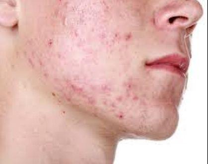 Lege eine Tomate aufs Gesicht und warte eine Stunde. Dann passiert etwas Großartiges mit deiner Haut.