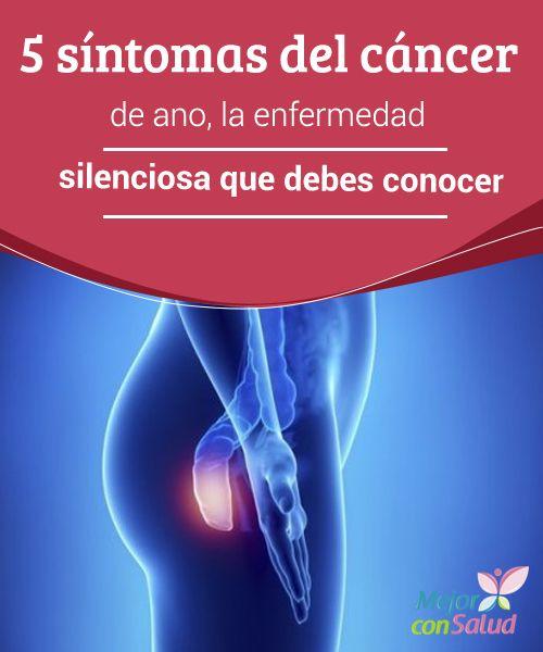 5 síntomas del cáncer de ano, la enfermedad silenciosa que debes conocer  No suele hablarse demasiado del cáncer de ano. Es una de esas enfermedades silenciosas que no presenta una incidencia tan elevada como el de pulmón o de mama, pero que, sin embargo, está ahí y debemos conocer.