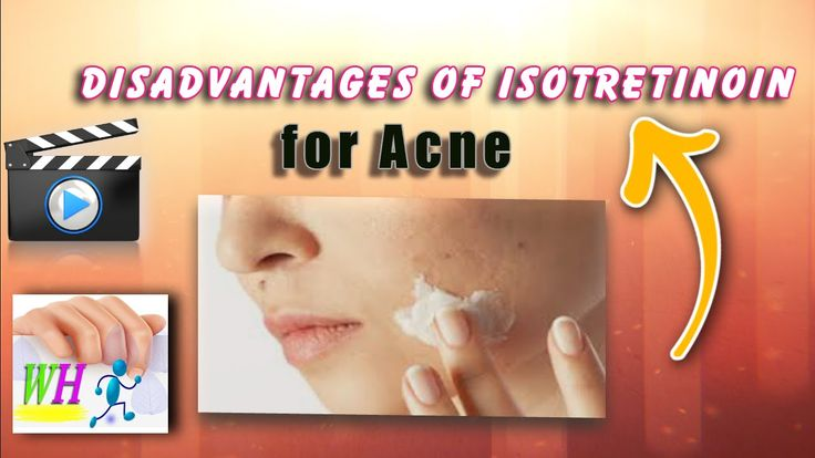 Disadvantages of Isotretinoin for Acne,natural acne treatment, pimple tr...