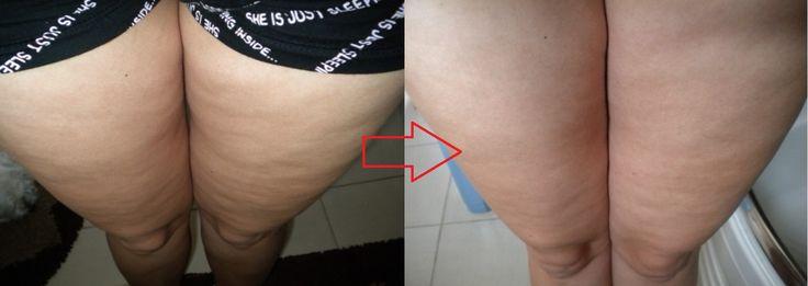 jak pozbyc sie cellulitu - body wrapping