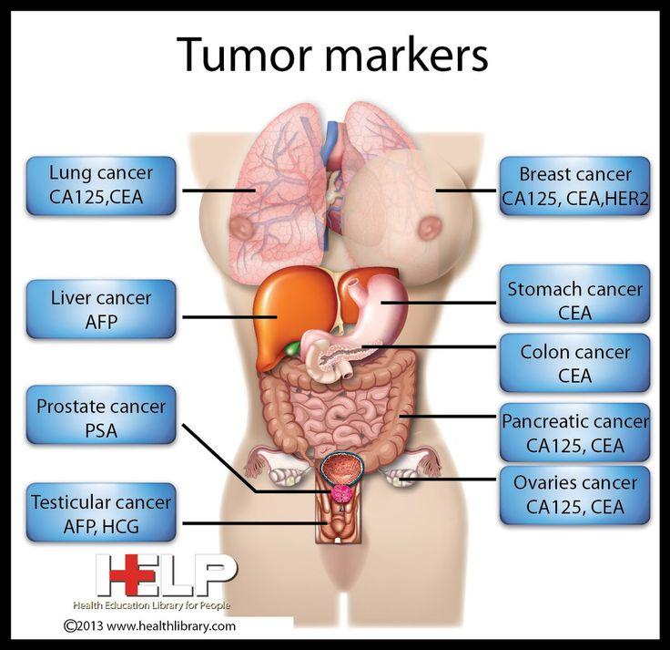 Tumeur Marqueur