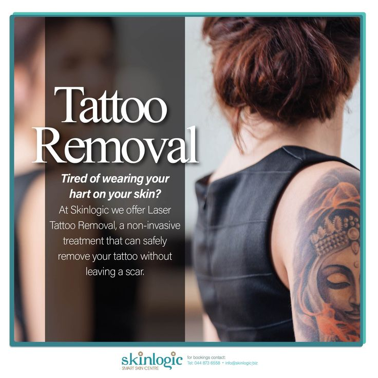 Tired of wearing your heart on your skin? At #Skinlogic we offer Laser Tattoo Removal, a non-invasive treatment that can safely remove your tattoo without leaving a scar. #LaserTattooRemoval