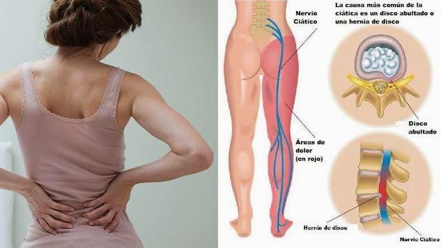 Tratamientos para aliviar dolores del nervio ciático - Vida Lúcida