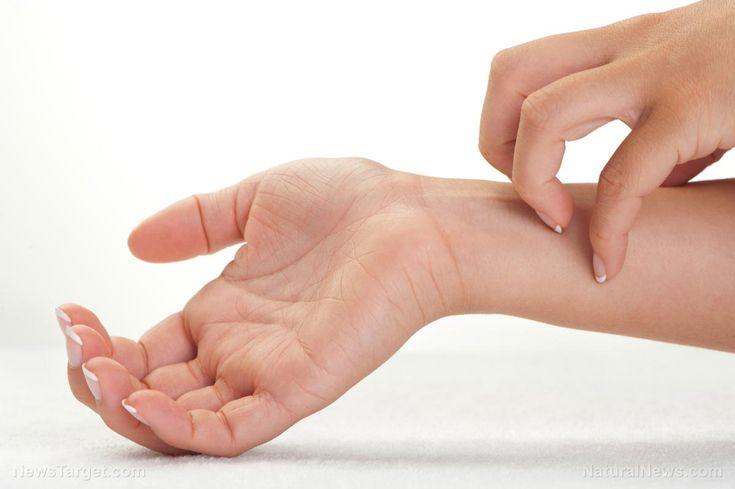 FDA approves outlandish $37,000 drug to fight eczema – NaturalNews.com
