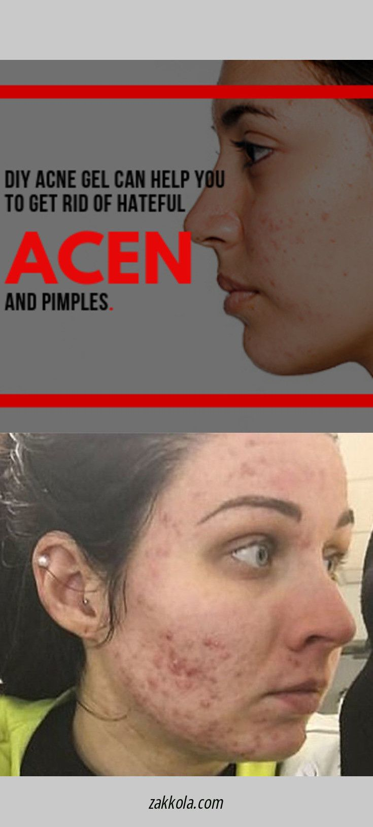 Find more information on acne. Check the webpage …