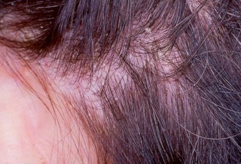 Nous allons vous donner quelques conseils pour réaliser un traitement maison, qui vous aidera à éliminer l'eczéma qui apparaît sur le cuir chevelu.