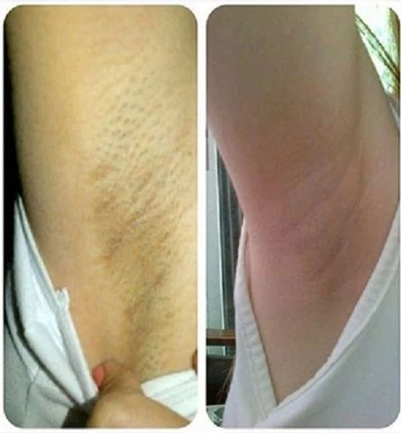 "How to Lighten Armpits and Bikini Area? How to treat the actual dark spots on underarms and bikini? Surprisingly, these can be treated easily at home. I am sure you have heard about these weird home treatments such as ""potato"" or ""lemon juice""."