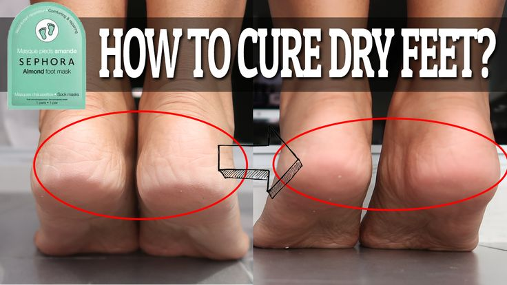 How to cure dry feet in 20mins?
