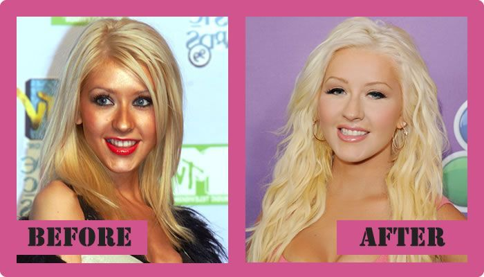 Christina Aguilera Plastic Surgery Before And After Christina Aguilera Plastic Surgery #ChristinaAguileraPlasticSurgery #ChristinaAguilera #gossipmagazines