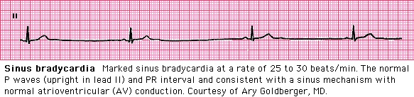 "Sinus arrhythmia often accompanies sinus bradycardia, but the P waves have a normal morphology unless atrial disease is present. (See ""Normal sinus rhythm and sinus arrhythmia""). A PR interval of up to 0.21 is normal in sinus bradycardia."