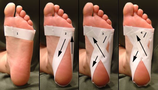 Foot taping for plantar fasciitis. Wrap strip around foot, at level of ball of foot. 2nd strip around heel, starting just below pinky toe, around sides of heel, & back up to first strip. 3rd strip around heel, starting just below pinky toe, like step 2 but, circle heel & in criss-cross, so that it ends just below big toe. Repeat step 3.