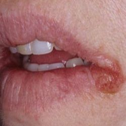 Angular cheilitis is an inflammation (and cracking) of the corners of the mouth due to a certain bacterial or fungal infection and their treatment is easy and very simple using #compound medicines.