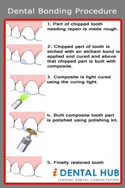 How Dental Bonding Can Enhance your Smile.
