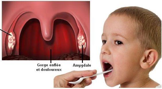 Guérir l'angine à streptocoque rapidement sans Antibiotiques