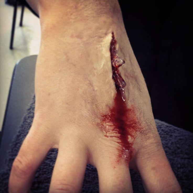 sfx wound