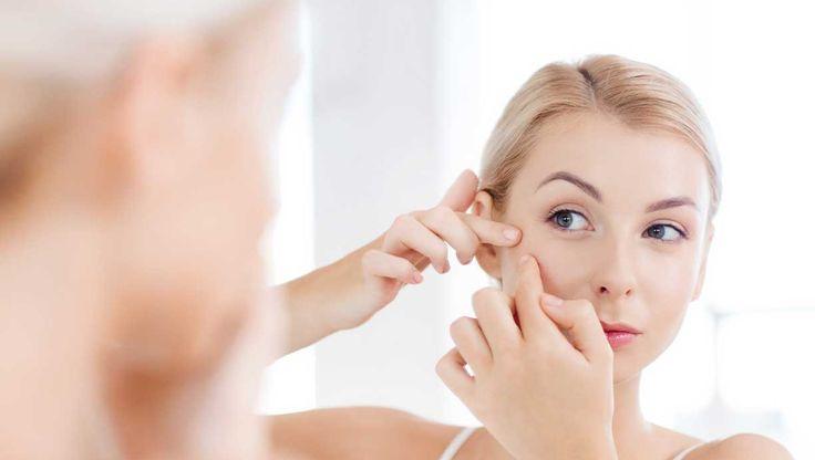 Døjer du også med sorte prikker i ansigtet? Så er du helt sikkert ikke den eneste. Hudorme rammer nemlig alle mennesker, mænd som kvinder, i alle aldre. Femina giver dig 6 gode råd til, hvordan du bedst bliver fri for hudormene.