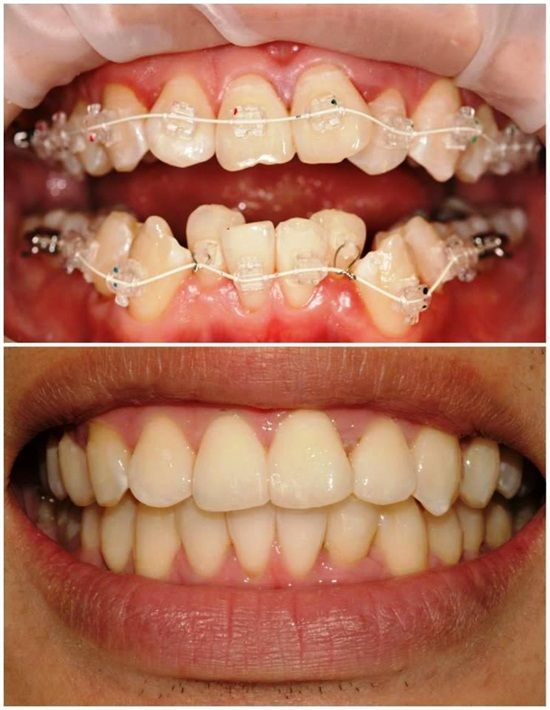how to become an orthodontist in india