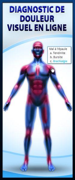 Névralgie d'Arnold : Symptômes, causes, diagnostic et traitement