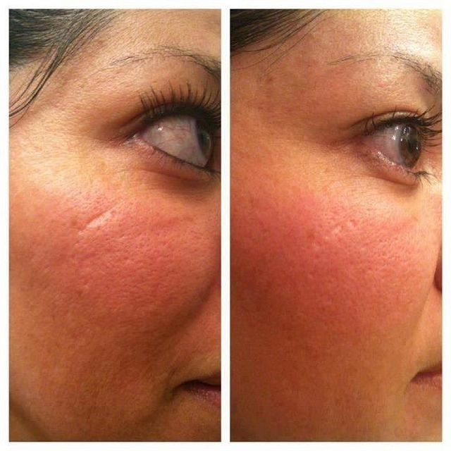 Nerium Before/After...skin is smoother, scar is diminished! www.taralaporte.nerium.com