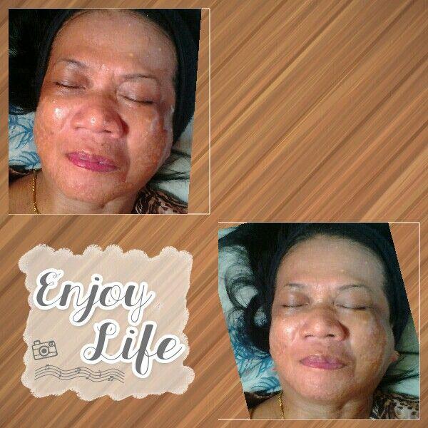 Treatment dengan galvanic spa dan polishing peel