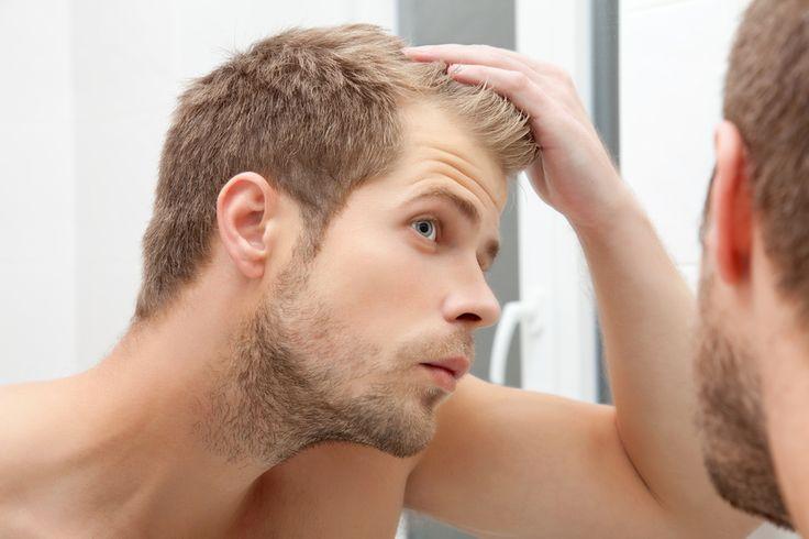Łysienie u mężczyzn