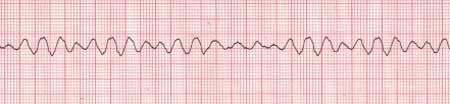"Ventricular Fibrillation V-fib is a cardiac arrest rhythm. It will NEVER have a pulse associated with it as the ventricles are quivering or ""fibrillating,"" not contracting. Survival from this lethal rhythm requires immediate CPR, defibrillation, and ACLS procedures. V-fib is characterized by chaotic indistinguishable waveforms. The waveforms will range from large/coarse to small/fine. V-fib will not feature a P-wave, QRS complex, or T-wave."