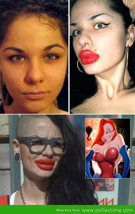 7 Worst Plastic Surgeries Ever! - YouTube